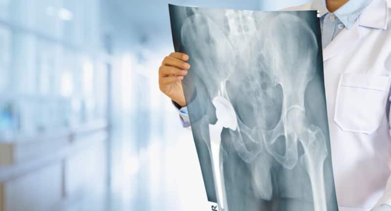 Kalça Protez Önerileri