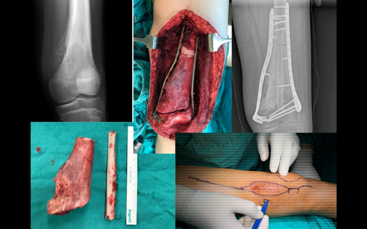 Tümör Ameliyatları