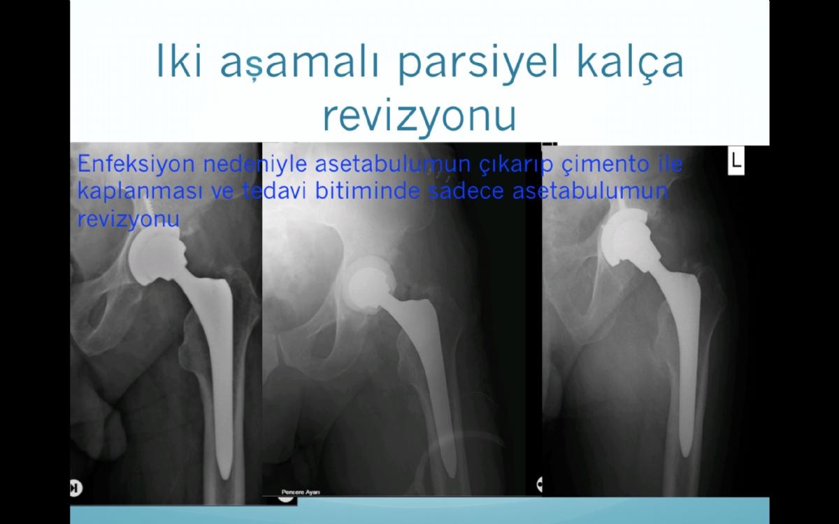 Kalça Protezi Revizyon Ameliyatı