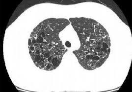 Histiositosiz X (Langerhans Hücreli Histiositozis)