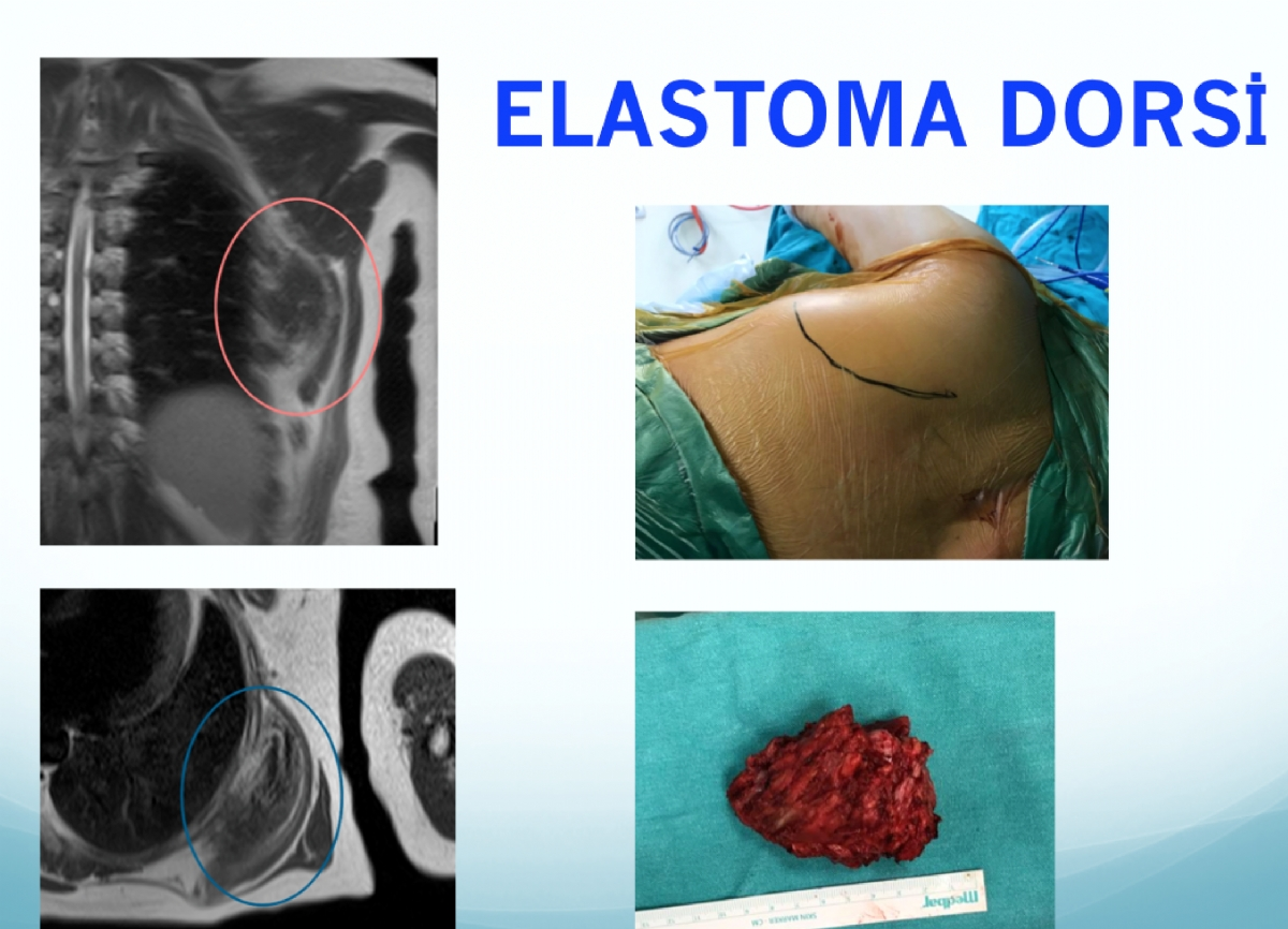 Elastofibroma Dorsi