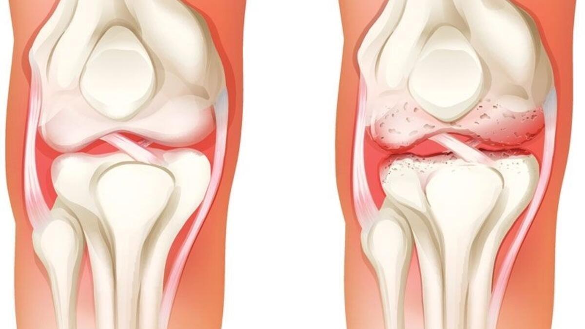 Diz Kireçlenmesi Protez Dışı Tedaviler