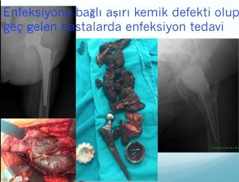 kalça protez revizyonu (iki aşamalı revizyon),