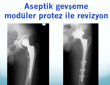 kalça protezi tek aşamalı revizyon