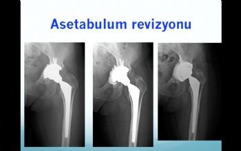 asetabulum revizyonu