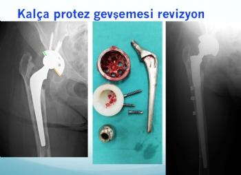 kalça protezi tek aşamalı revizyon (implant yetmezliğine bağlı problemler )