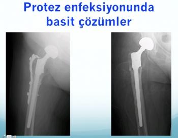 protez enfeksiyonu tedavisi