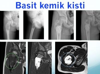 femur basit kemik kisti, femur simple bone cyst