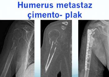 humerus metastaz plak - çimento
