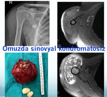omuz sinovyal kondromatosiz , shoulder synovial chondromatosis