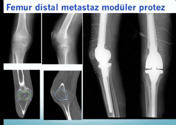 femur distal metastaz modüler protez