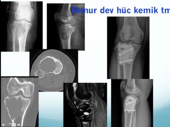 femur dev hücreli kemik tümörü, femur giant cell bone tumor, curetaj nitrogen and bone cement