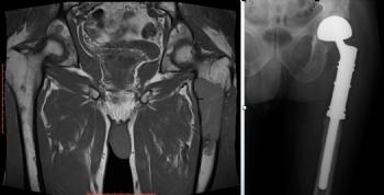femur proksimal metastaz modüler protez ile rekonstrüksiyon