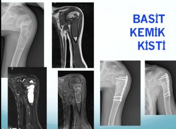 humerus basit kemik kisti, humerus simple bone cyst
