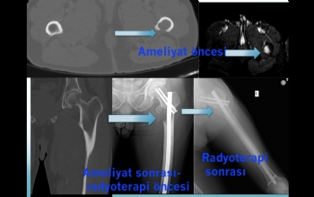 femur proksimal metastaz fiksasyon ve radyoterapi ile tümör kontrolü