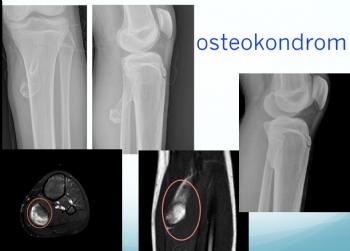 tibia osteokondrom, eksositos, osteochondroma, exocytosis