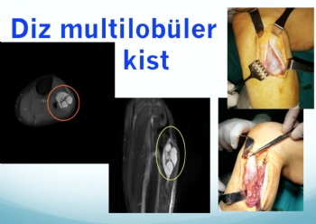 diz multilobiler ganglion kisti