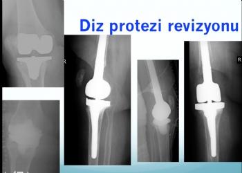 Diz Protezi Revizyonu