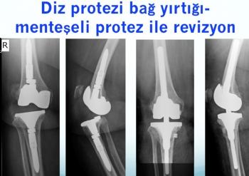 diz protezi bağ yetmezliği, menteşeli protez ile revizyon
