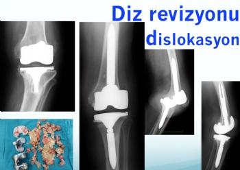 diz protezi revizyonu, dislokasyonu- redüksiyon