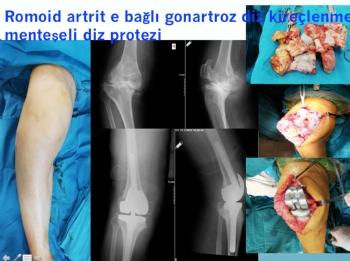 ileri derece kemik defektli ve bağ yetmezliği olan hastada diz protezi