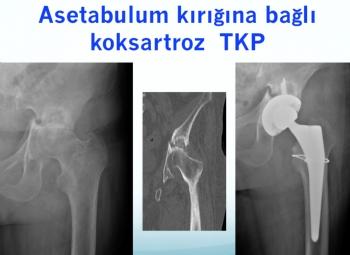 asetabulum kırığına bağlı koksartroz total kalça protezi