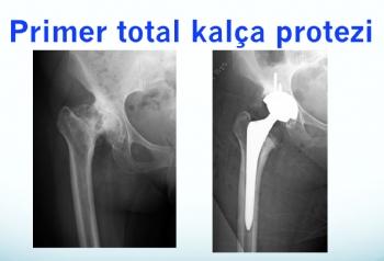 primer total kalça protezi