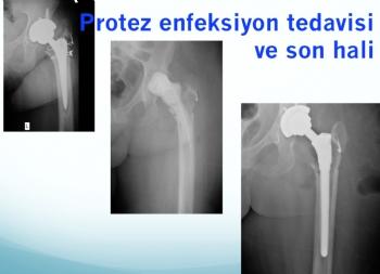 kalça protez revizyonu (iki aşamalı revizyon)