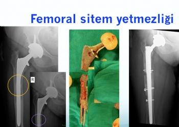kalça protezi femoral sitem kırılması ve revizyonu