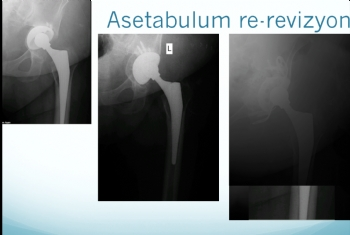 kalça re-revizyonu (asetabulum)