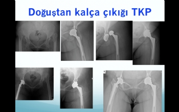 doğuştan kalça çıkığı total kalça protezi