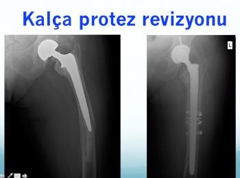 total kalça protezi revizyonu