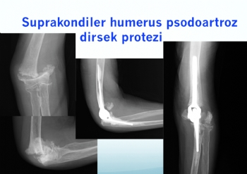 humerus alt uç kaynamama (psodoartroz) dirsek protezi