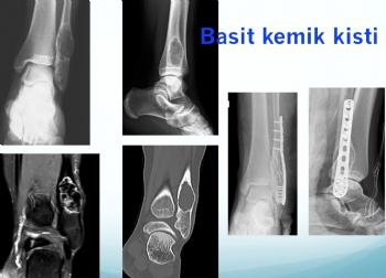 fibula basit kemik kist, simple bone cyst