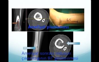 Osteoid osteomanın cerrahi olarak çıkarılması