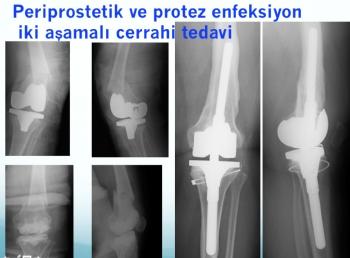 periprostetik kırık ve enfeksiyon iki aşamalı tedavi