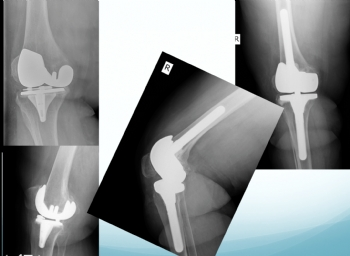 diz protezi tek aşamalı revizyon (aseptik gevşeme )