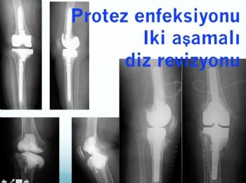 diz protezi  iki aşamalı revizyon (septik-enfeksiyona bağlı gevşeme )