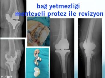 diz protezi bağ yetmezliği - menteşeli protez revizyonu