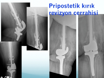 periprostetik kırık ve revizyon