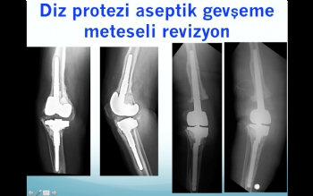 diz protezi  bağ yetmezliği