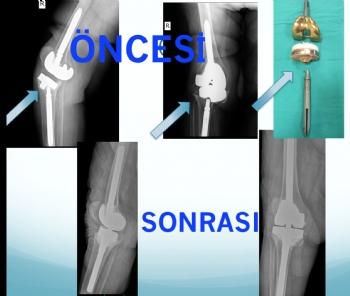 diz protezi tek aşamalı revizyon (implant yetmezliğine bağlı problemler )
